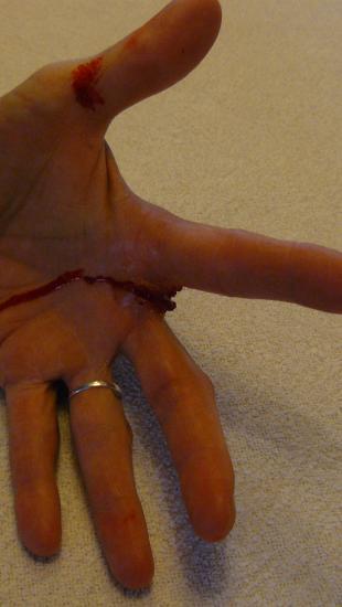 Schaats in vinger